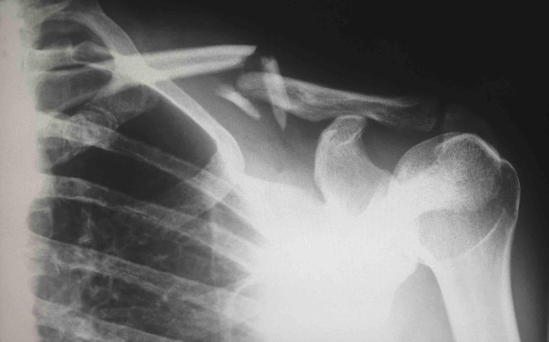 Personal Injuries and Broken Bones: Understanding Different Types of Fractures