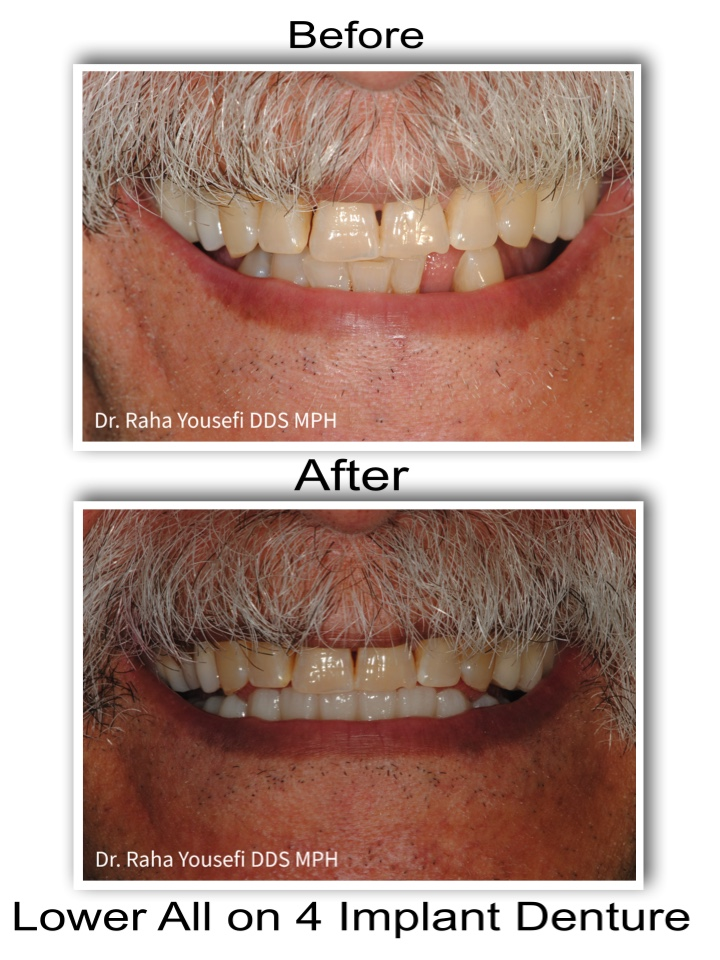 Lower All on 4 Implant Denture