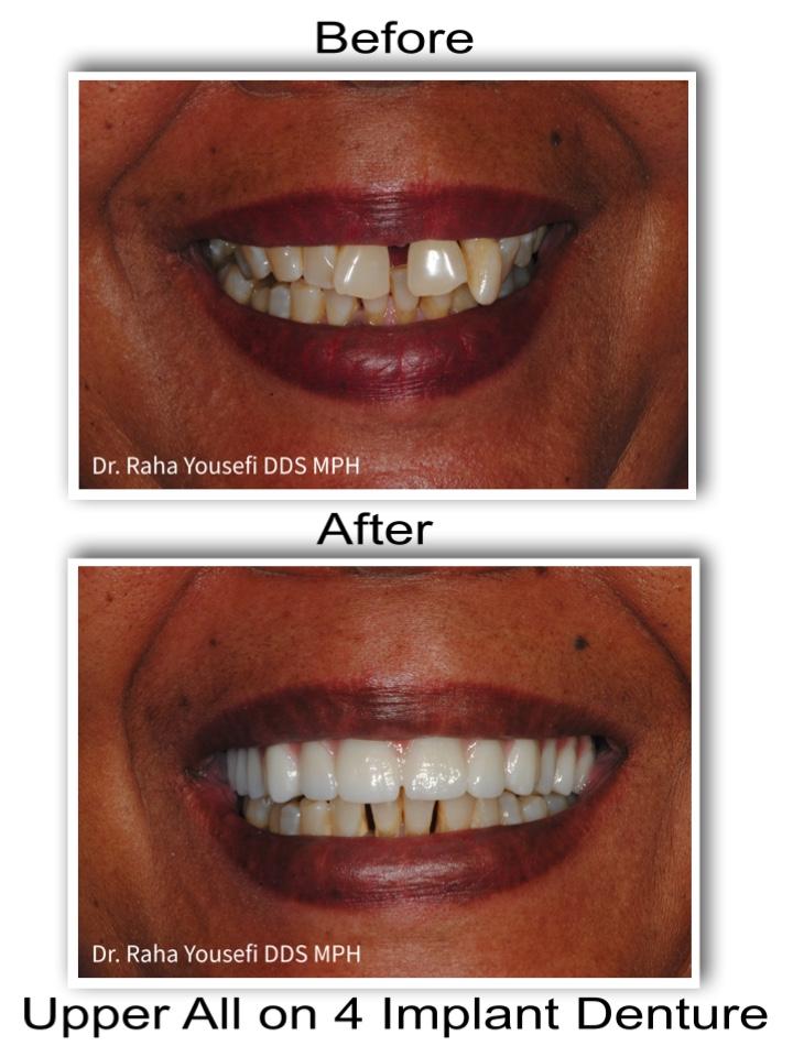 Upper All of 4 Implant Denture