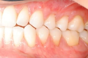 After Tissue Grafting