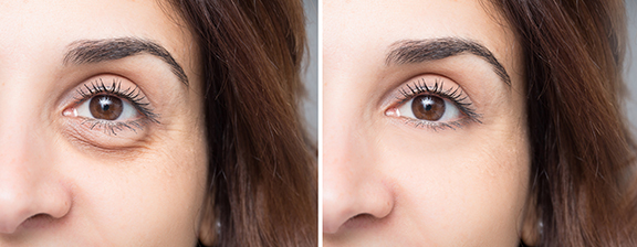 photo of a woman's face before and after blepharoplasty