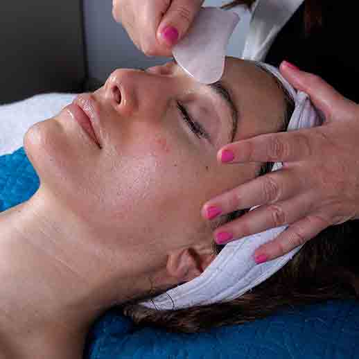 Dania Beach Chemical Facial Peel