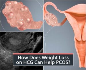 How Does Weight Loss on HCG Can Help PCOS?