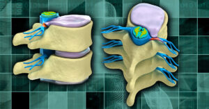 Clinical Applications of Regenerative Medicine in Orthopedic and Interventional Pain Management