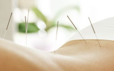 How Does Acupuncture Work For Weight Loss?