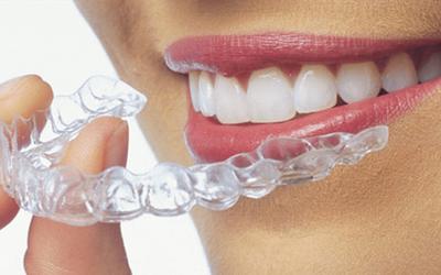 Best Dental Aligner In California?