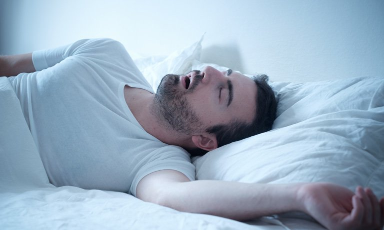 10+ Sleep Apnea Causes & Symptoms in 2019