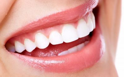Why Is Orthodontic Treatment Necessary? Why It's Expensive?