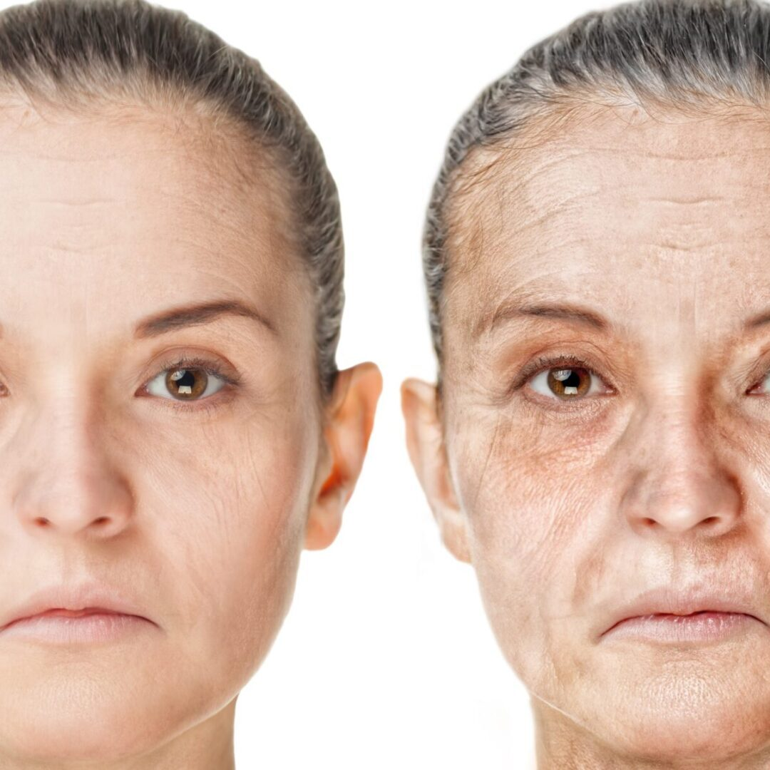 Skin aging_COPPED