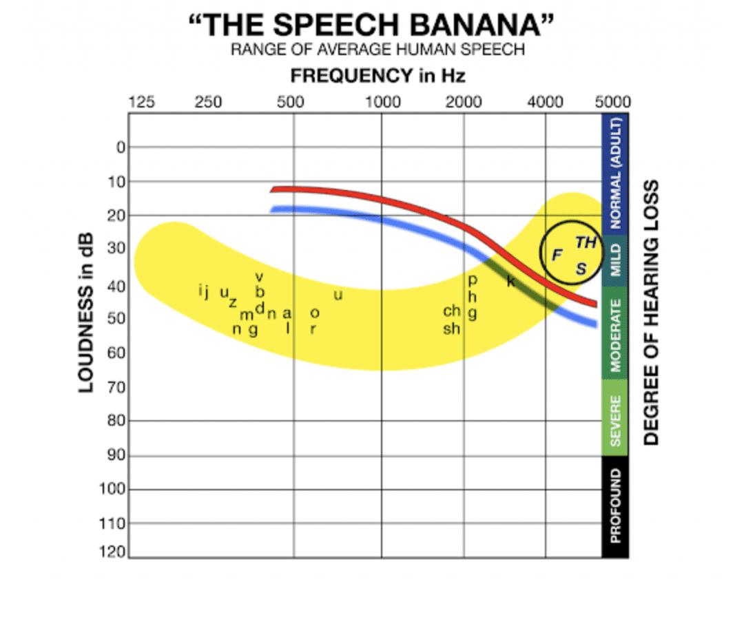 speech banana audiogram