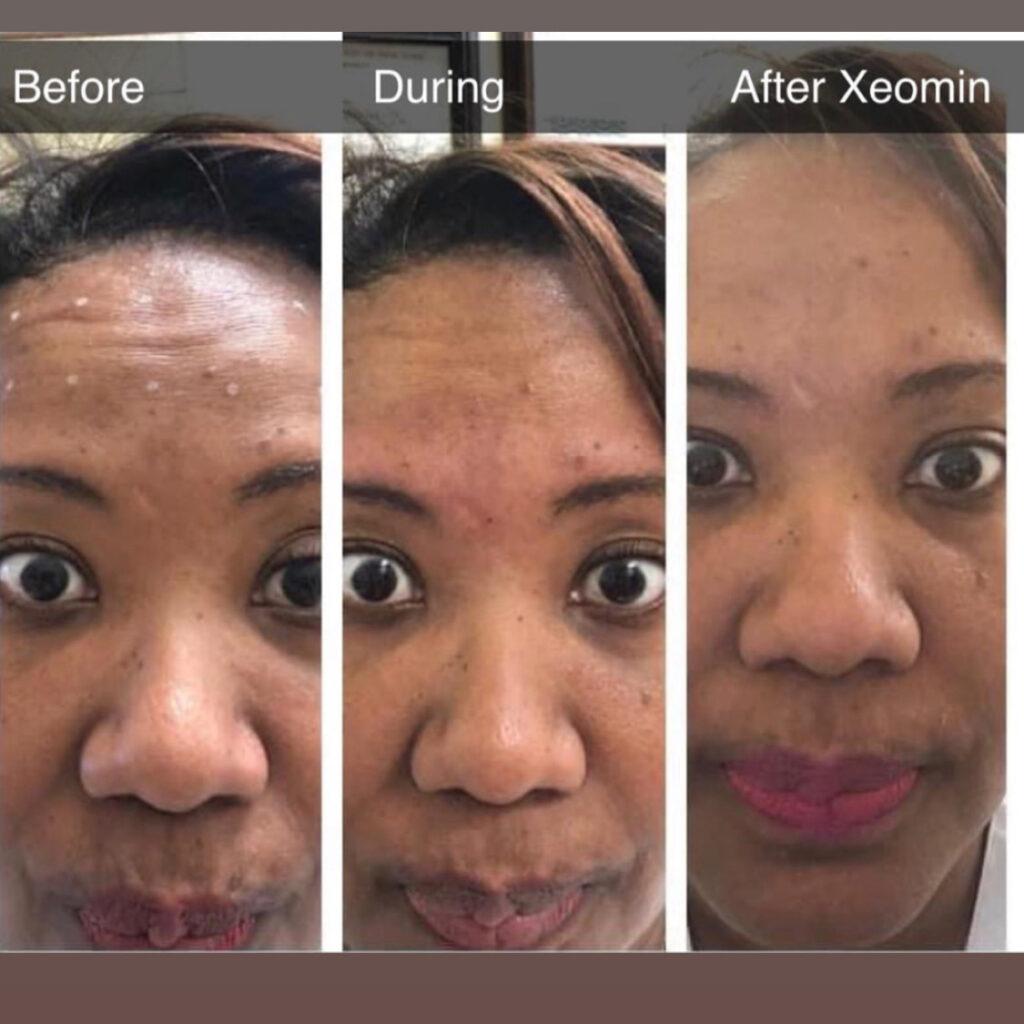 Botox-and-Xeomin