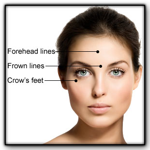 acupucture-facial
