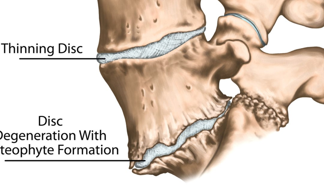 Bone Spurs of the Spine – What Causes Them and How Can They Be Treated?