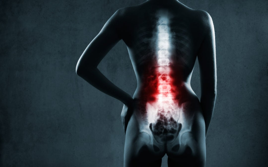 I Was Told I Have Lumbar Spinal Stenosis…What Does That Mean?