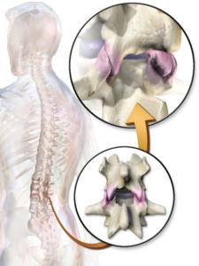 facet joints