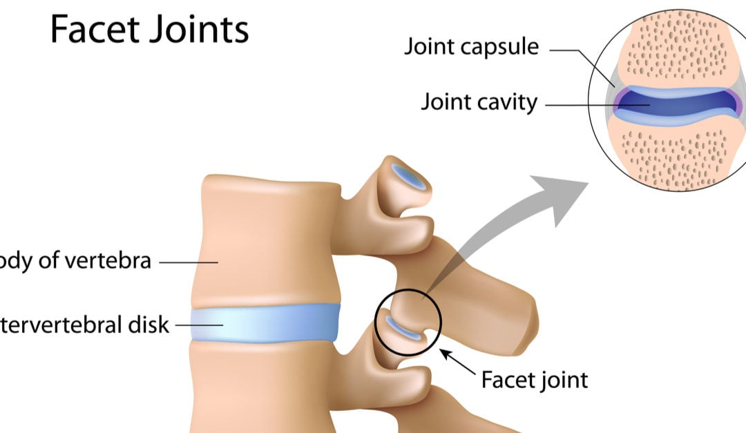 Facet Joint Arthritis: Everything You Need to Know