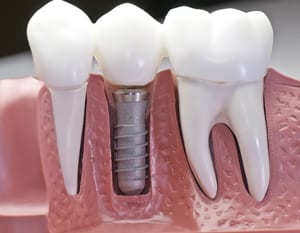Whiten Teeth Arlington TX | Mouth Makeover | Teeth in a Day