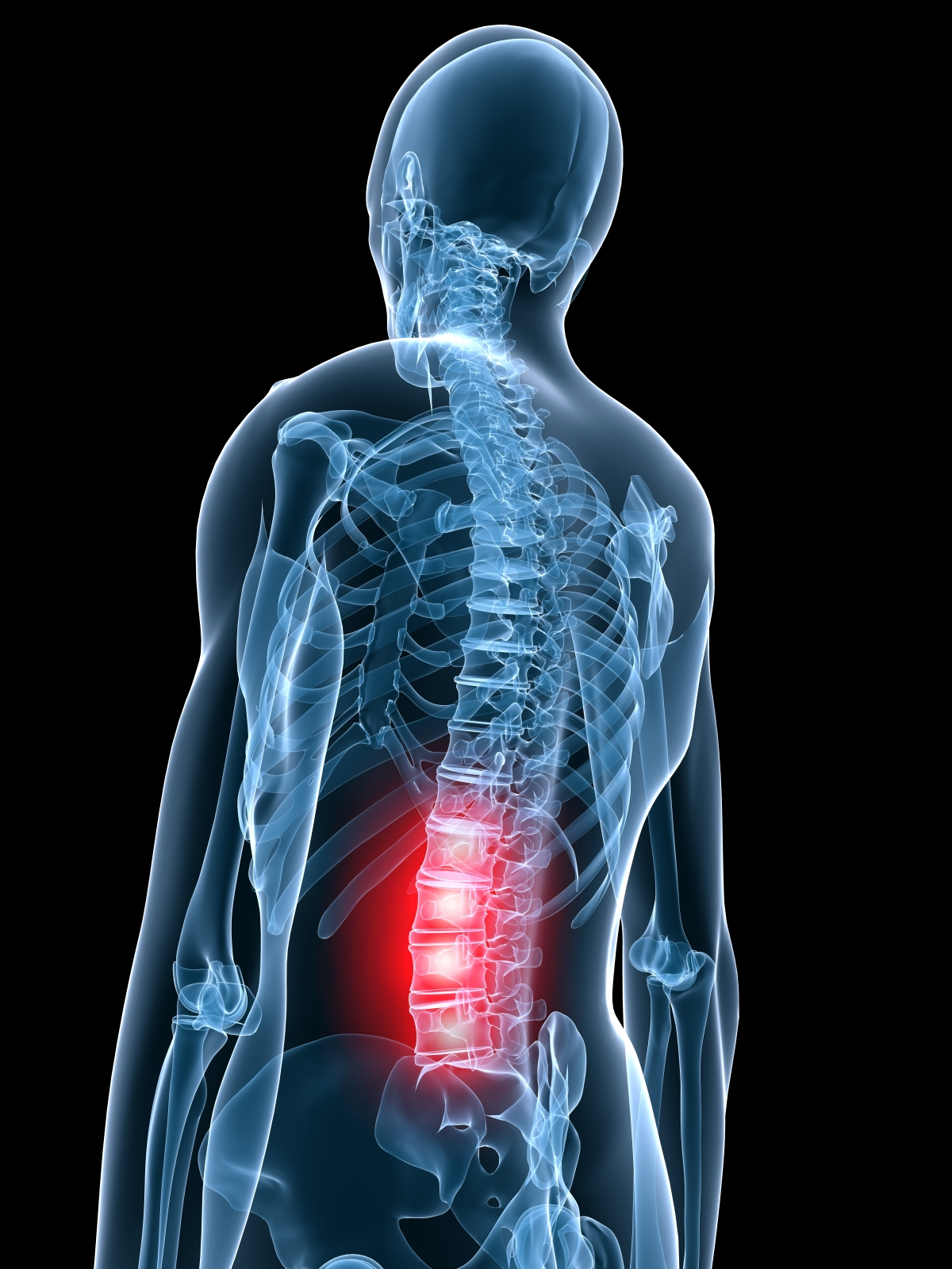 Cervical Radiculopathy Treatment in Austin