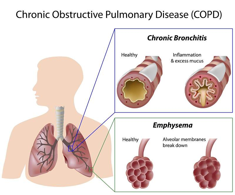 COPD, Workplace Exposure & Cancer Cases Handled by Poolson Oden