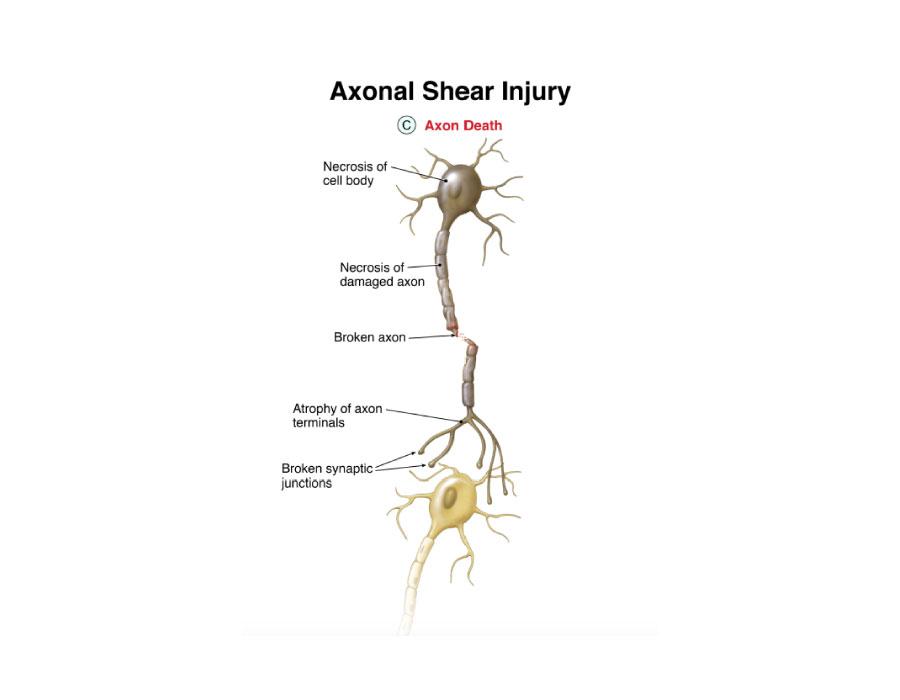 Brain Trauma Injury Cases Poolson Oden