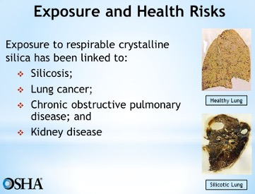 Silica Exposure and Health Risks Poolson Oden Attorneys