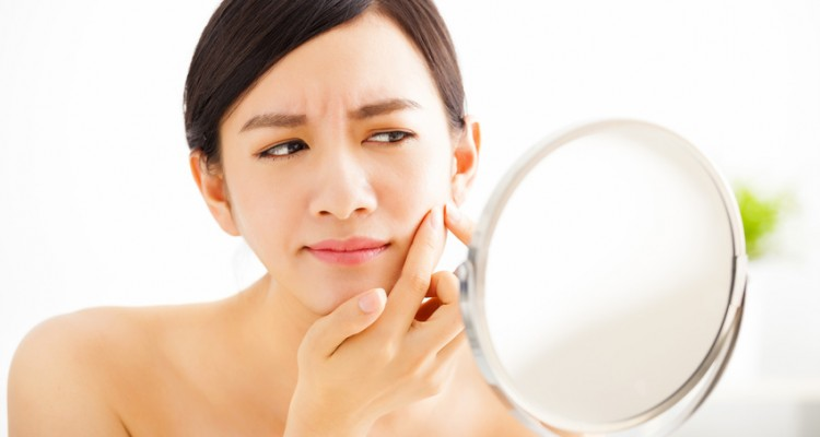 best-way-to-get-rid-of-acne-scars