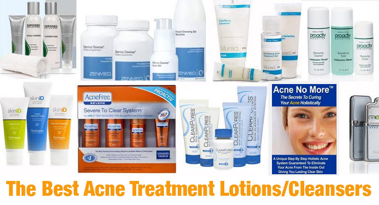 Best Acne Treatment Lotions