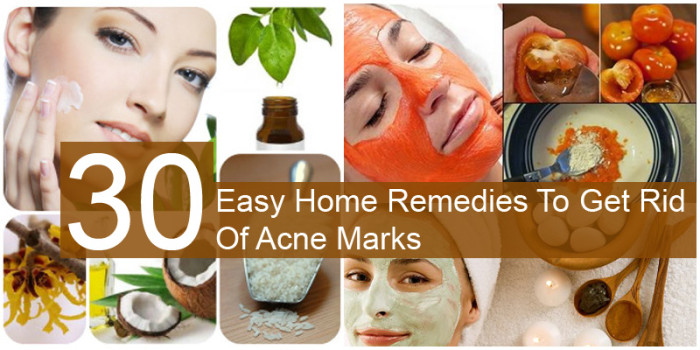 home remedies to get rid of acne marks