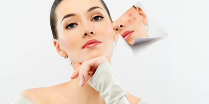 How To Treat Acne Completely