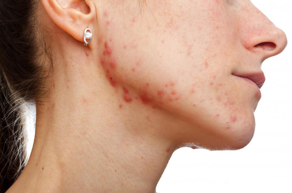 Overview Of Jawline Acne