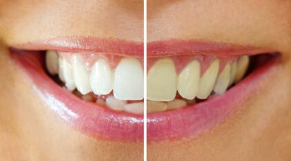 Teeth-Whitening Products Could Cause Bigger Problems Than Yellow Teeth