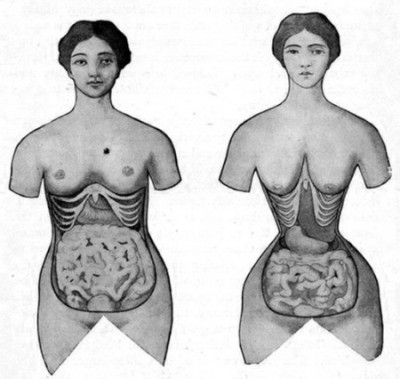 effet-waist-training-instagram-tendances beauté dangereuses