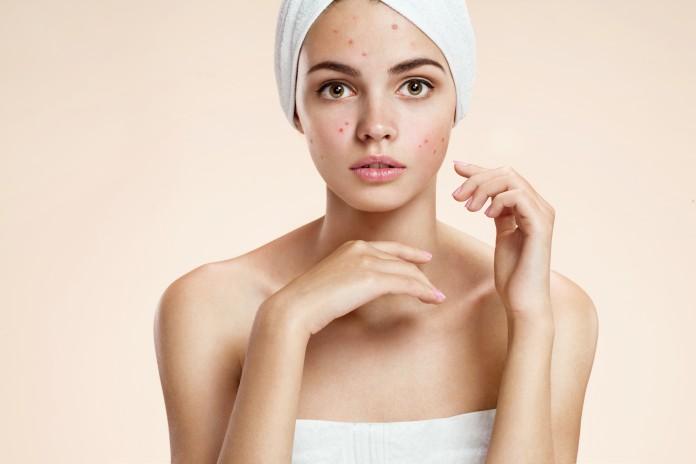 produits-traiter-acne-une