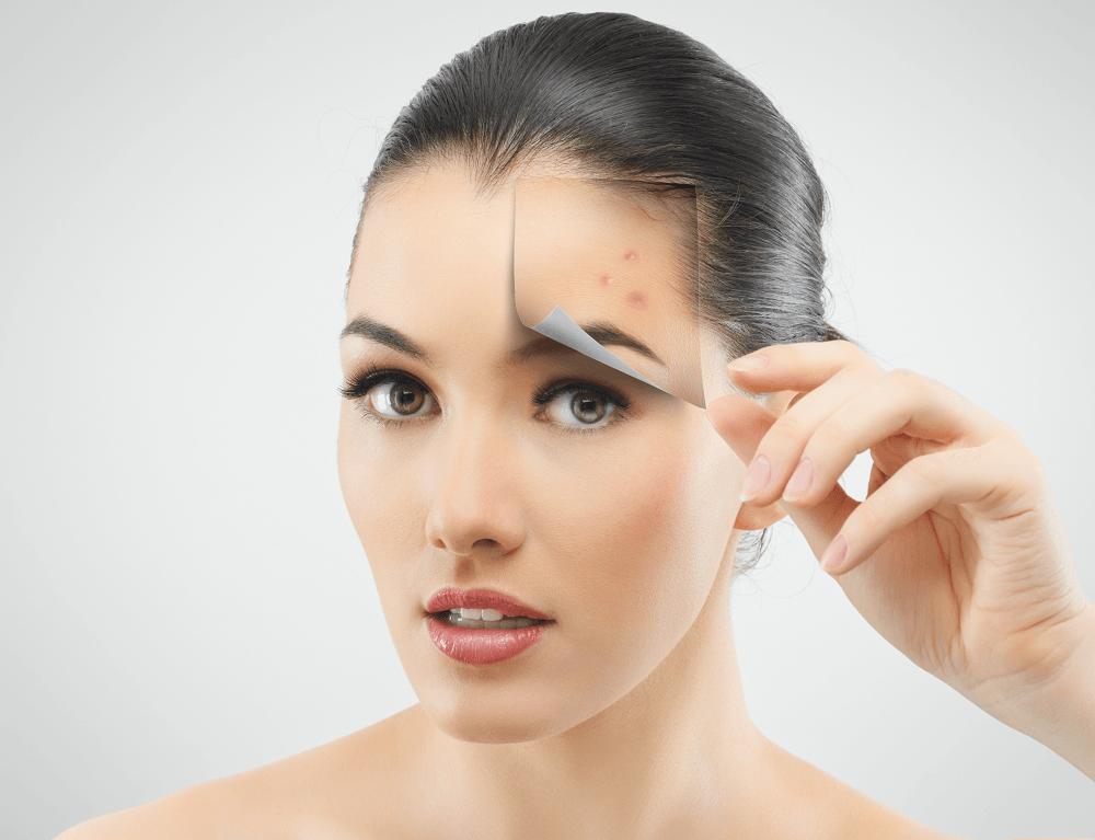 traitement-acne-une