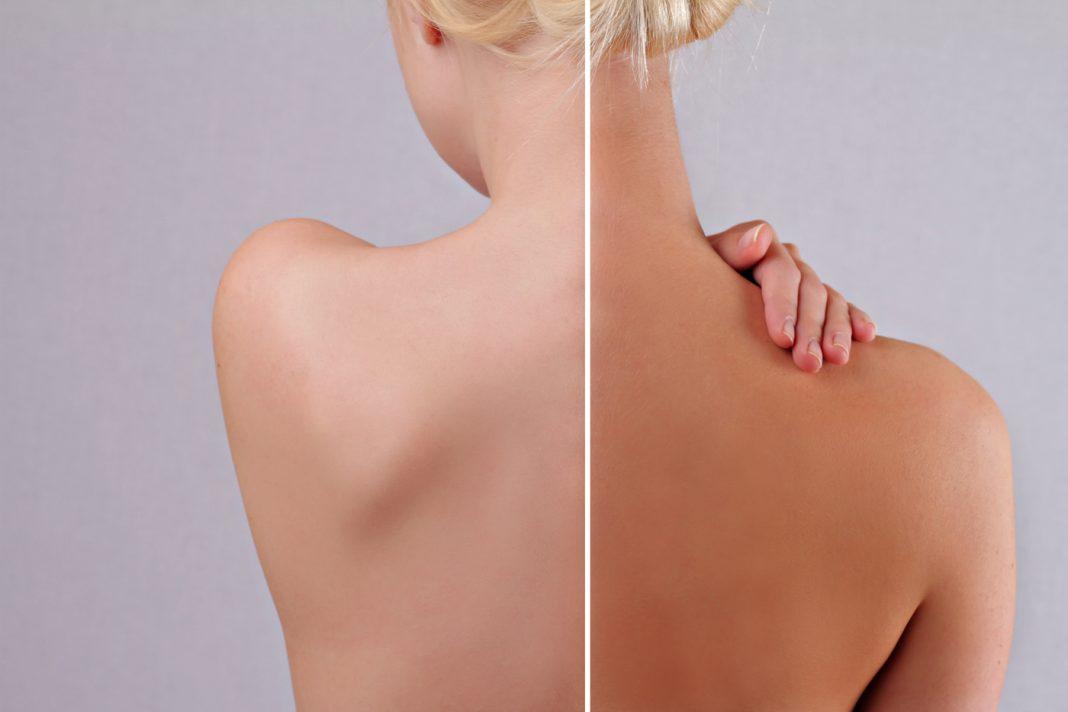 airbrush-bronzage-spraytan-nuda-canada