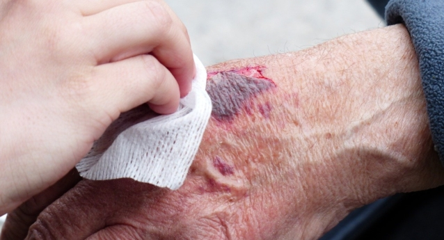 Certified Wound Care