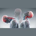 Etheredge Chiropractic in The Villages treats many injuries, including whiplash