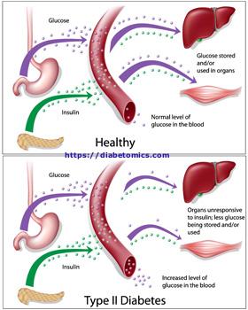 Diabetes diagram