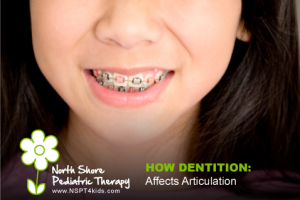 How Does Dentition Affect Articulation?