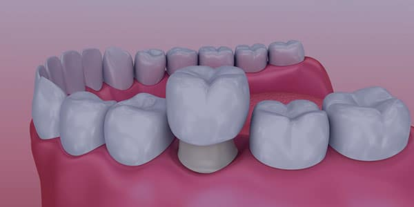A computer-generated image showing how a crown fits over a tooth