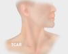 Elite Heart Surgeons TCAR vs CEA Scars Post
