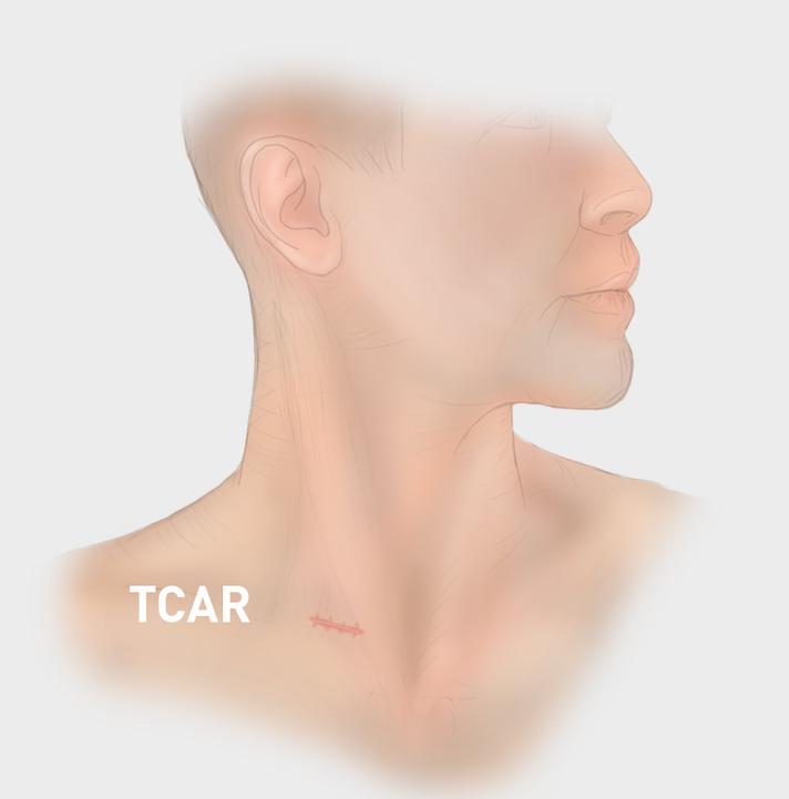 New Minimally Invasive Procedure Prevents Stroke