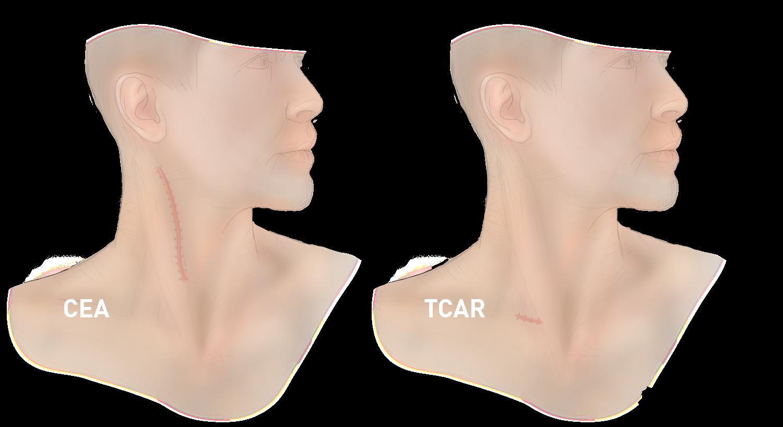 Elite Heart Surgeons TCAR vs CEA Scars