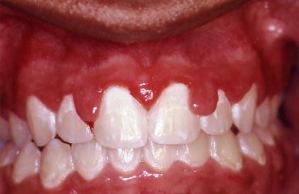 Excessive Gums Procedure
