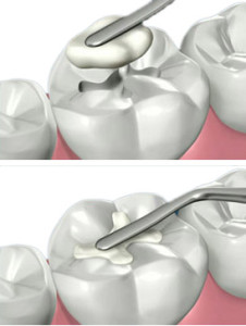 Composite Filling from a Phoenix Dentist