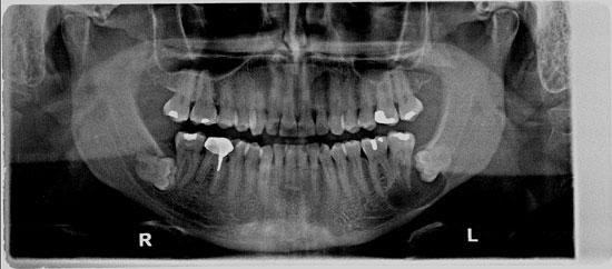 Low Dose Digital X-Ray