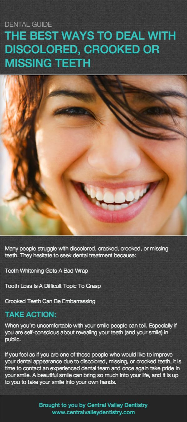 phoenix teeth whitening and tooth replacement options