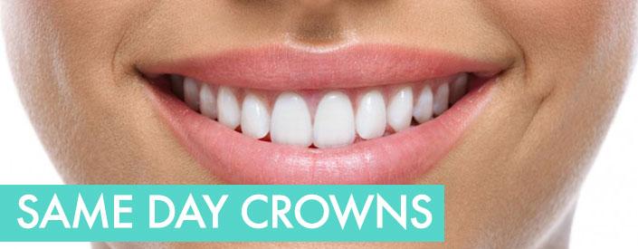 Same Day CEREC Crowns Phoenix