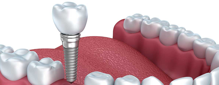 Phoenix Dental Implants