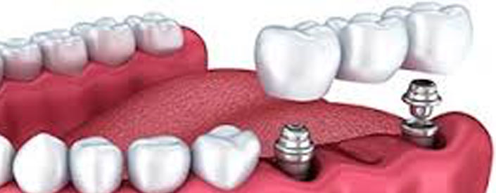 Dental Implants Phoenix Arizona